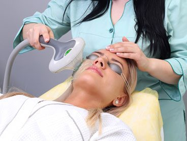IPL Photo facial